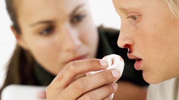Que significa soñar que me sangra la nariz